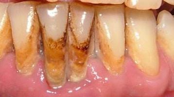 """La """"Piorrea"""" e i denti che si muovono"""