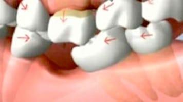 Conseguenze della perdita di un singolo dente