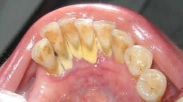 Tartaro o Calcolo Dentale