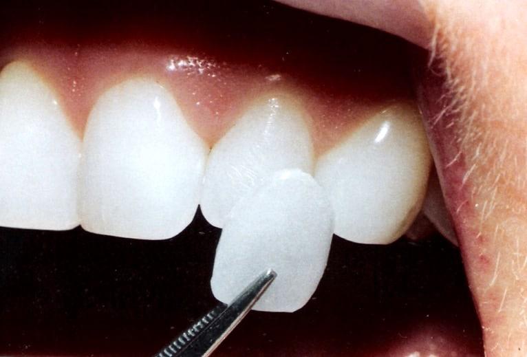 faccette dentali laspezia